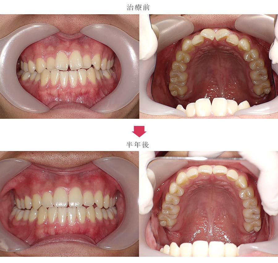 反対咬合、非抜歯の症例