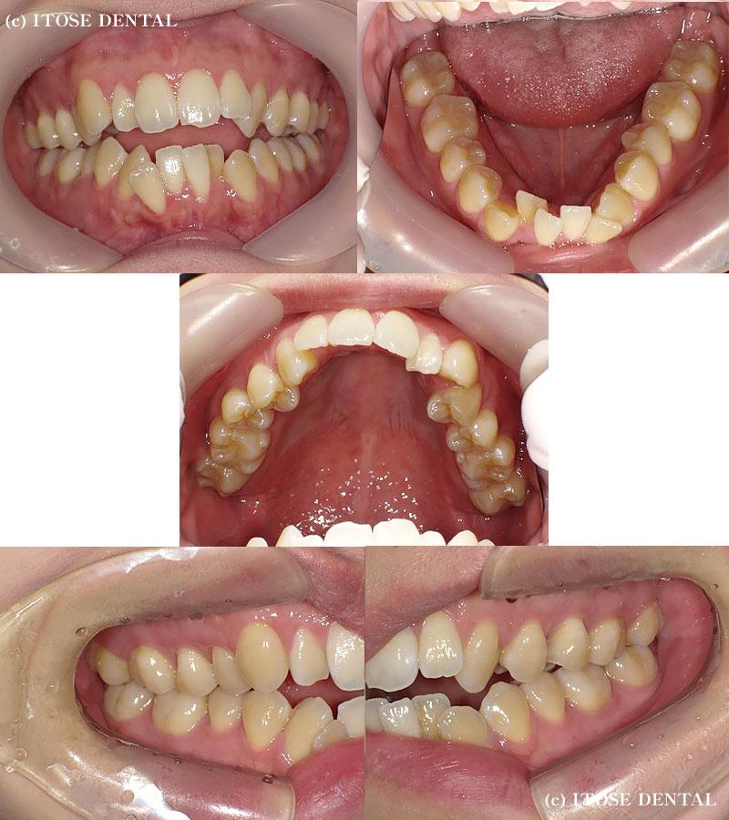 開咬の症例、治療前