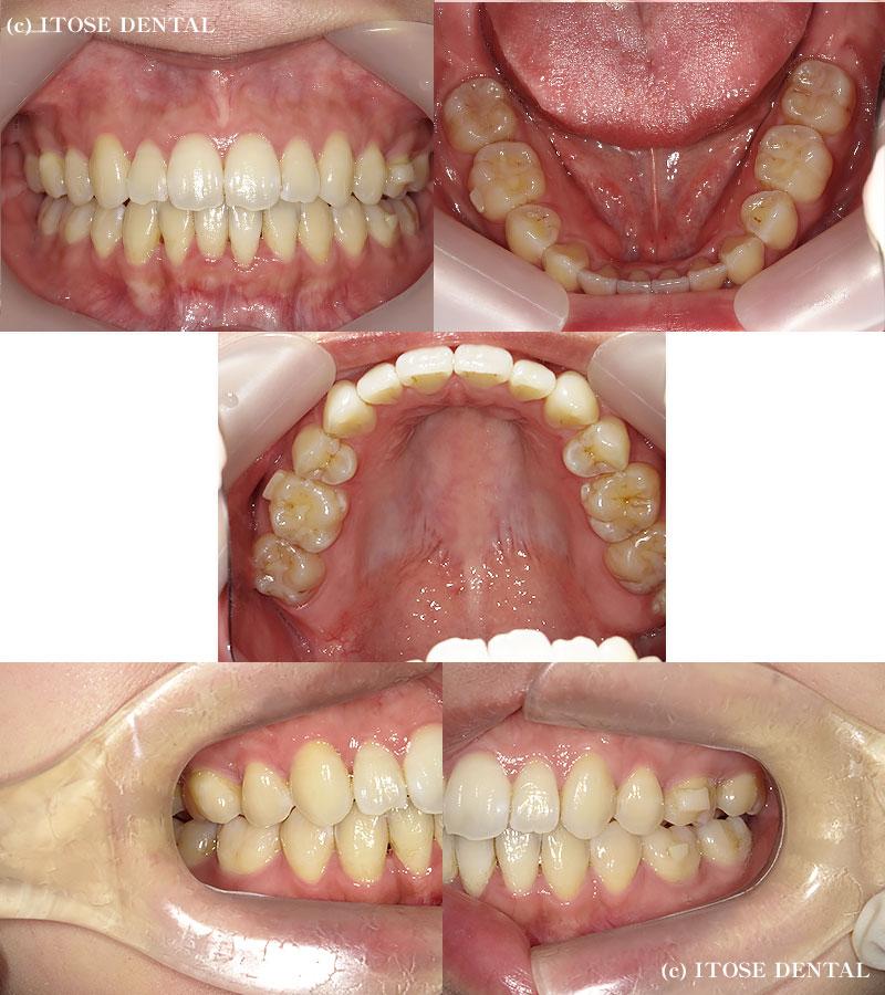 開咬の症例、治療後