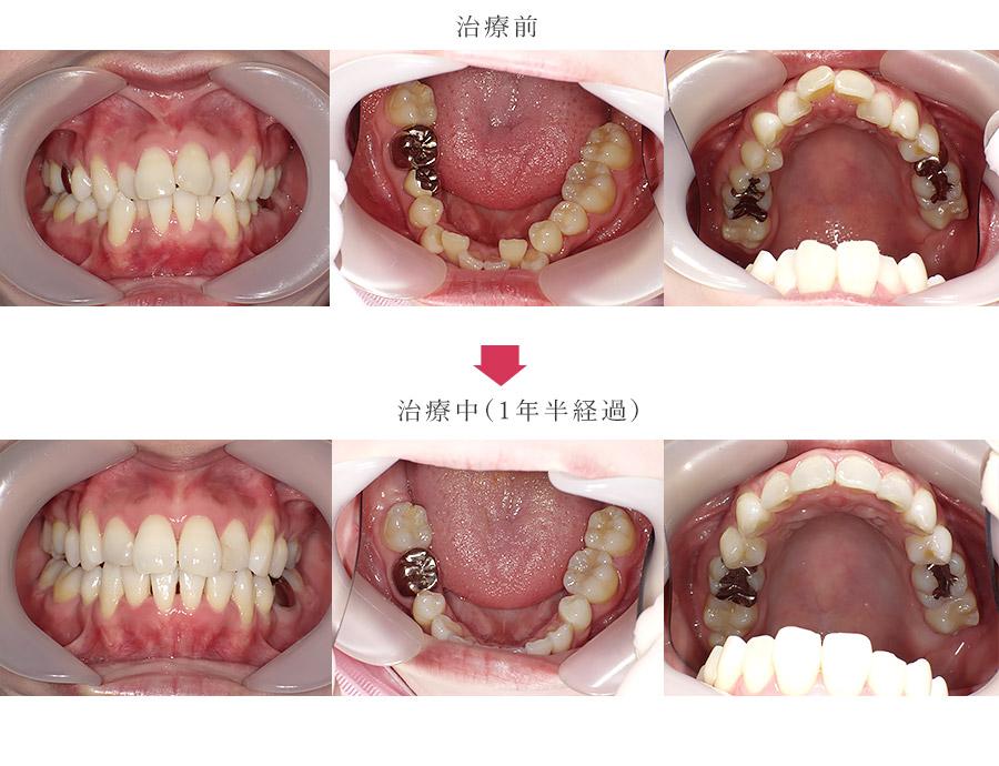 上下顎前突と叢生を短期間で改善している症例